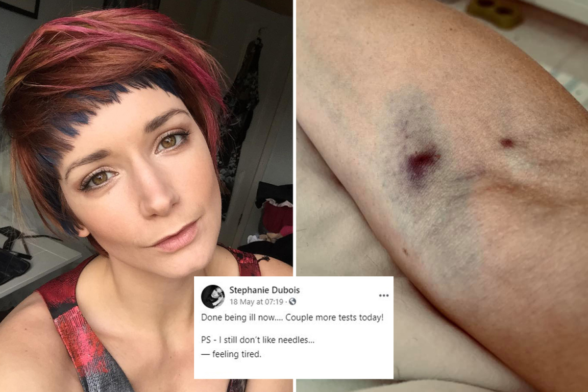 Mannequin Stephanie Dubois reveals she felt 'horrendous' & confirmed bruised arm in final posts earlier than dying after Covid jab