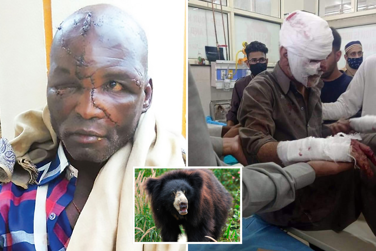 World's worst sloth bear assaults as beasts tear off faces and savage victims for taking selfies