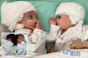 Conjoined twin sisters see each other for the first time after being separated in 16-hour operation